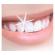 درمان لیزری دندانهای پوسیده در ۵ دقیقه