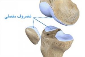 غضروف مفصلی